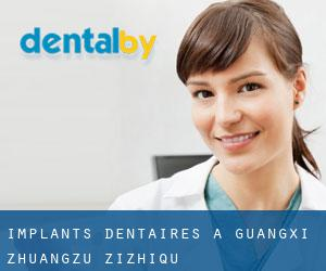 Implants dentaires à Guangxi Zhuangzu Zizhiqu