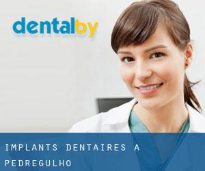 Implants dentaires à Pedregulho