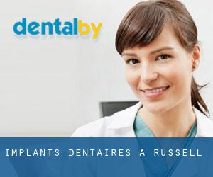 Implants dentaires à Russell