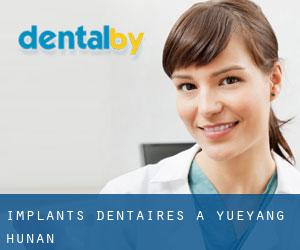 Implants dentaires à Yueyang (Hunan)