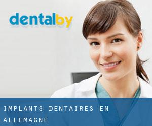 Implants dentaires en Allemagne